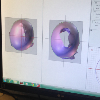 tyson helmet imaging