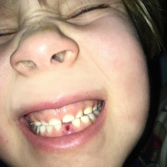 The big first tooth lost!